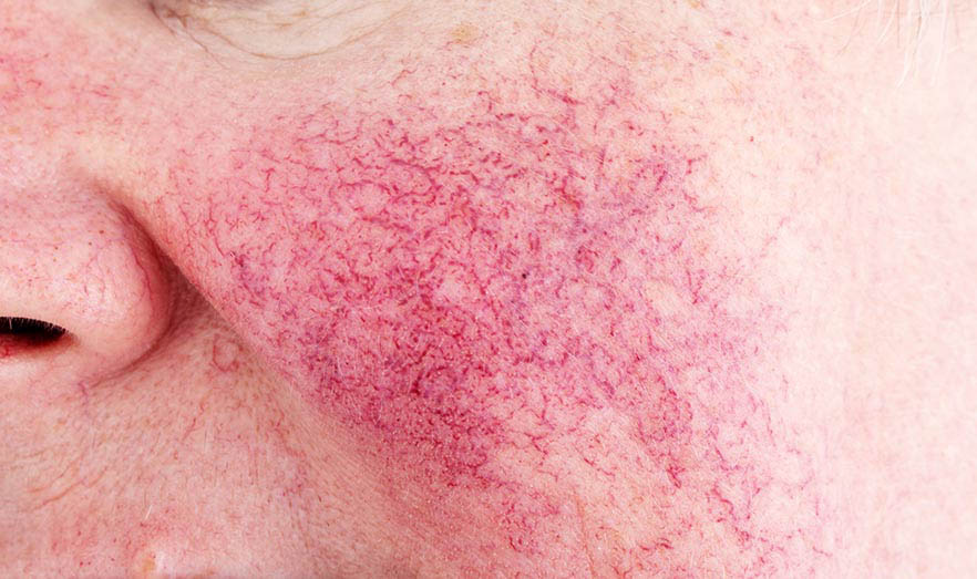 This is an image showing Rosacea (Original Chinese: 紅斑痤瘡, 酒糟鼻) (Source: The Selfology Skincare Guide—A Comprehensive Skincare Guide for All Skin Types and Complexions —selfology,co/skincare— Autumn Edition)